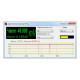 50 Hz Adaptive Filter