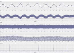 Программа Многоканальный осциллограф. Отображение зарегистрированных мгновенных данных с тензодатчиков при помощи программного обеспечения ZETLAB SENSOR