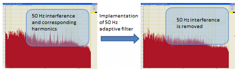 Implementation of 50 Hz adaptive filter