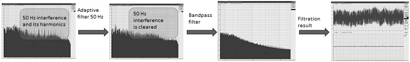 Signal before and after digital filtering